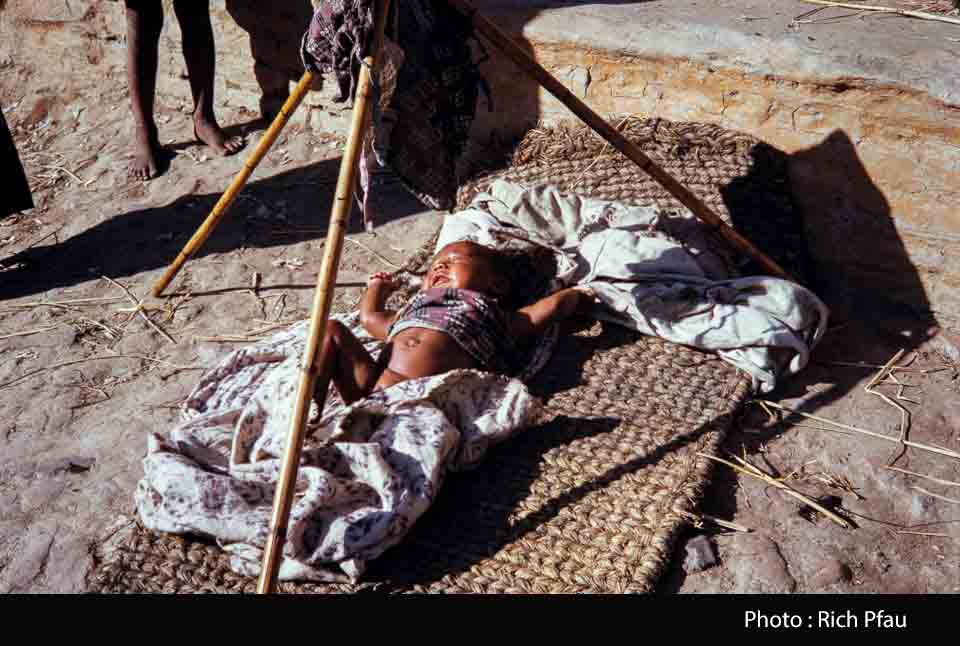 Baby having a traditional sun/oil bath image